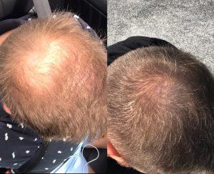 Hair Rejuvenation in Smyrna Georgia